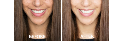Revitol Skin Brightener cream before after